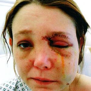 Kelly Winter assault case